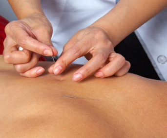 Intramuscular Stimulation (IMS) & Acupuncture